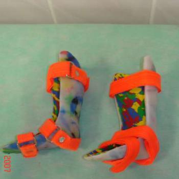 łuski ortopedyczne