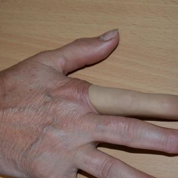 E 021 Proteza kosmetyczna w obrębie ręki