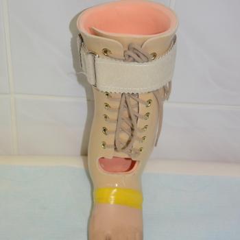 A 002 Proteza uzupełniająca stopę