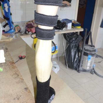 B 011 Protezowe wyrównanie skróconej kończyny dolnej w obrębie podudzia