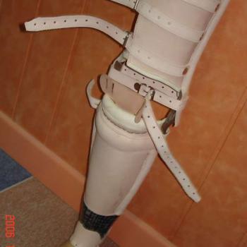 proteza skórzana podudzia